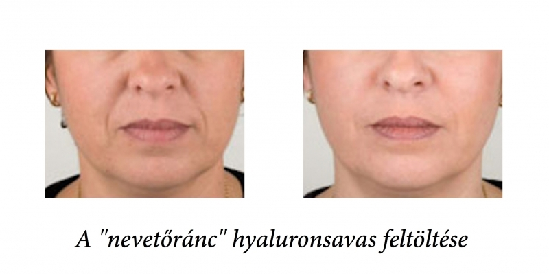 before-after_nasolabialis