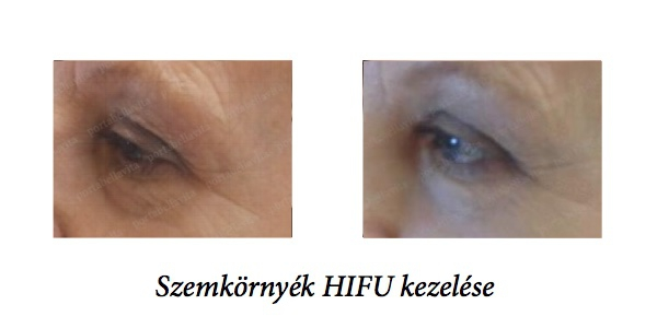 before-after-szem-hifu