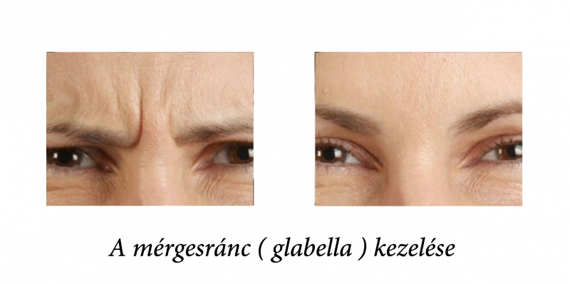 glabellabotox_before-after1