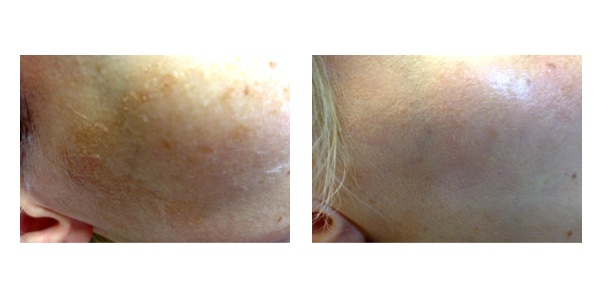 before-after-tunde-lezer